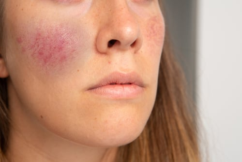 holistic treatment condition skin rosacea