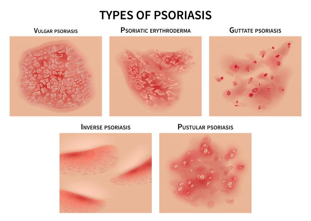 skin conditions Types of psoriasis